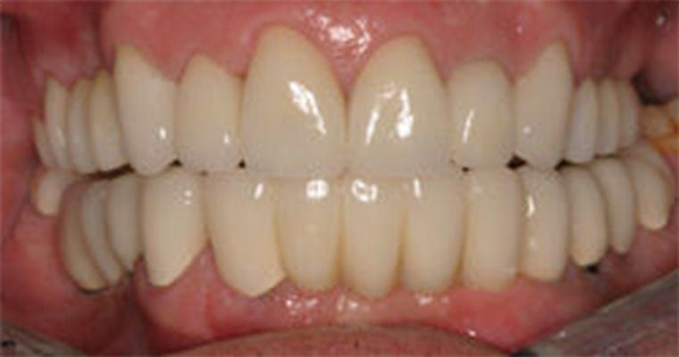 Photo of dental implants after placement