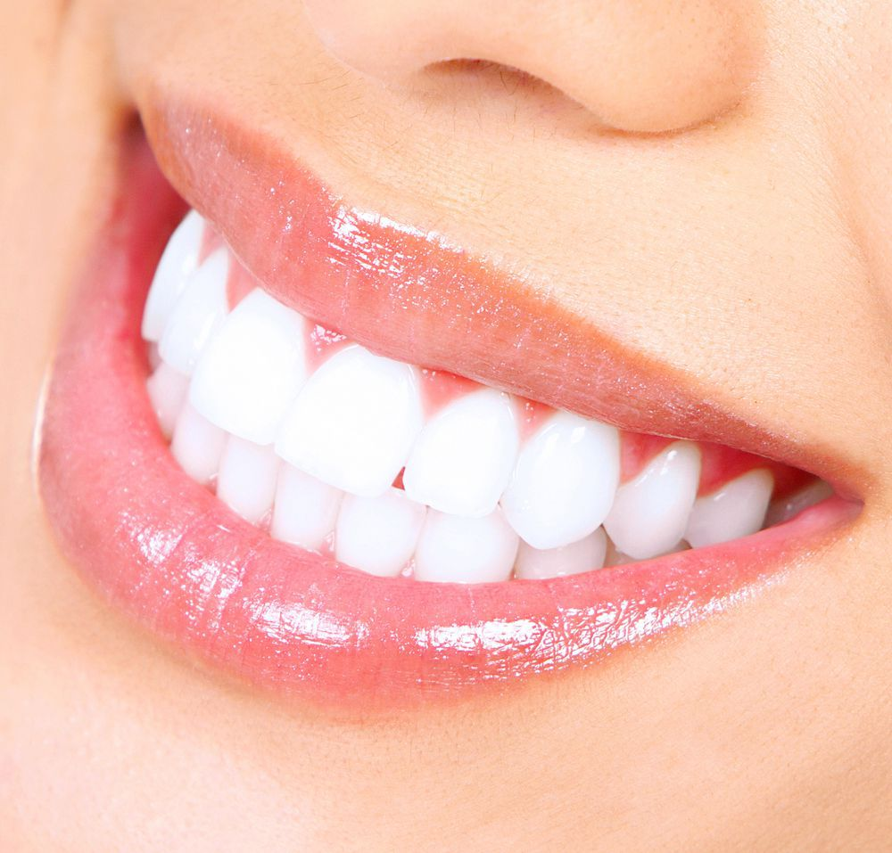 6 Benefits of Straight Teeth - West Palm Beach Dentist