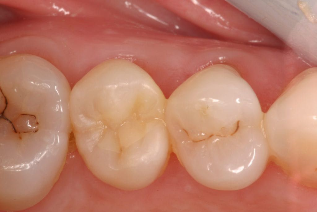 Picture showing Metal-Free Fillings