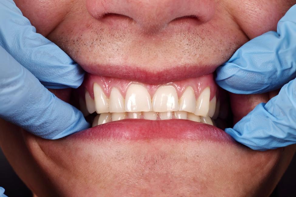 close up of human teeth
