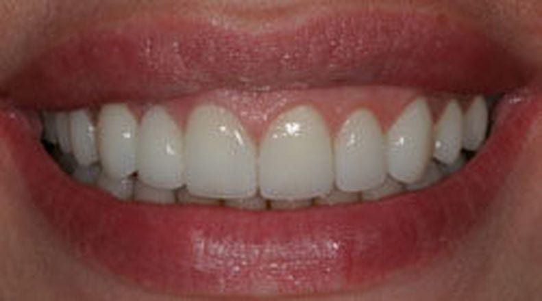 Close up of the After results of Porcelain Crowns & Bridges