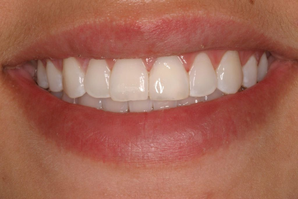 Close up of the after result of teeth whitening