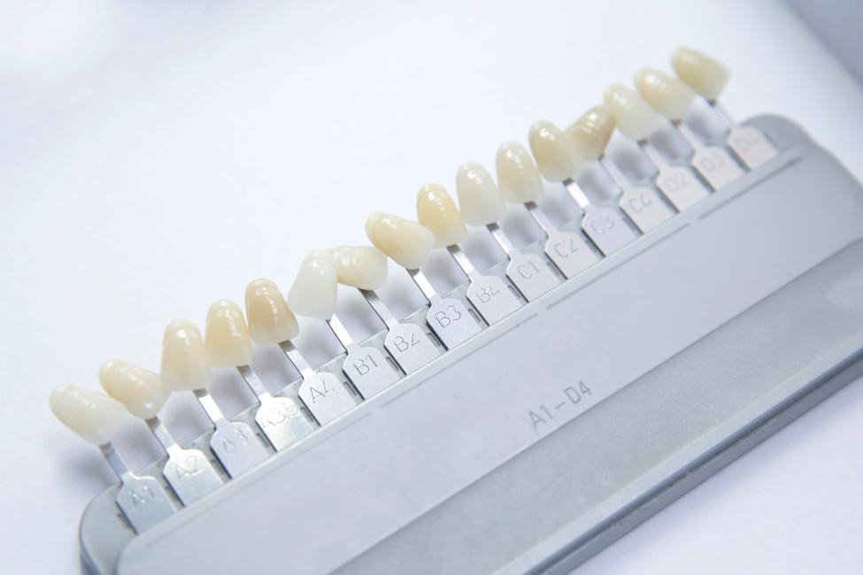 different veneer shade teeth