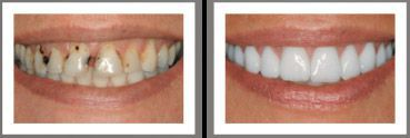 teeth before and after dental treatment