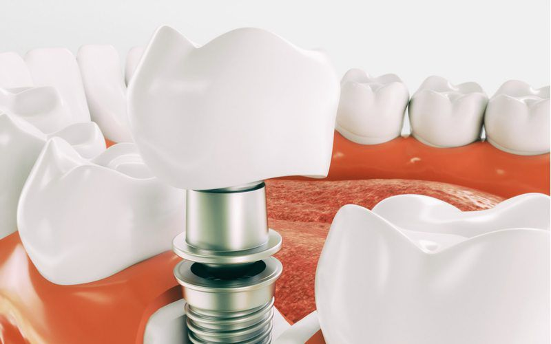 graphic of a dental implant