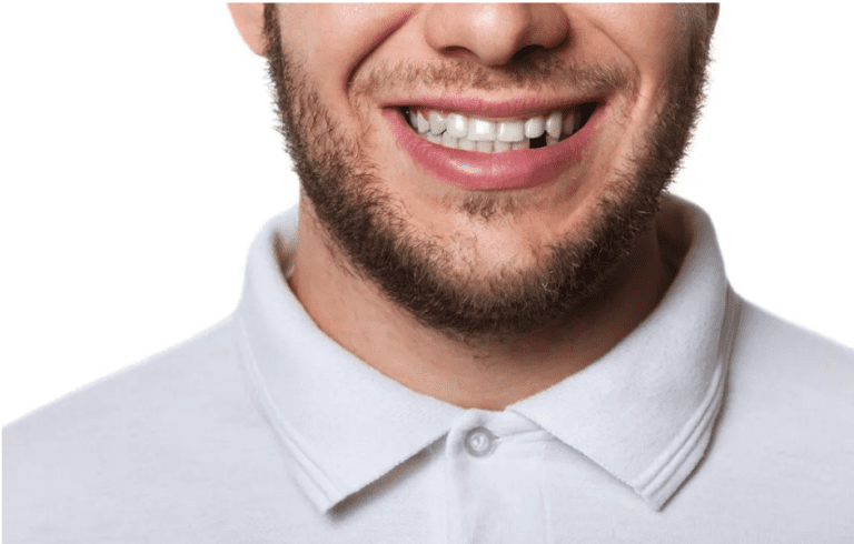 Close up of man smiling with a missing tooth