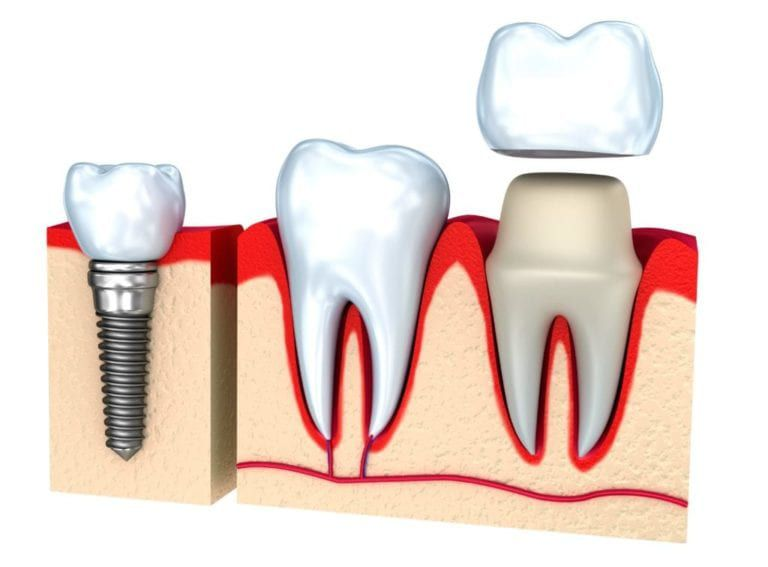 Graphic of a dental implant and crown