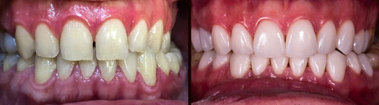 Close up of mouth before and after Veneers