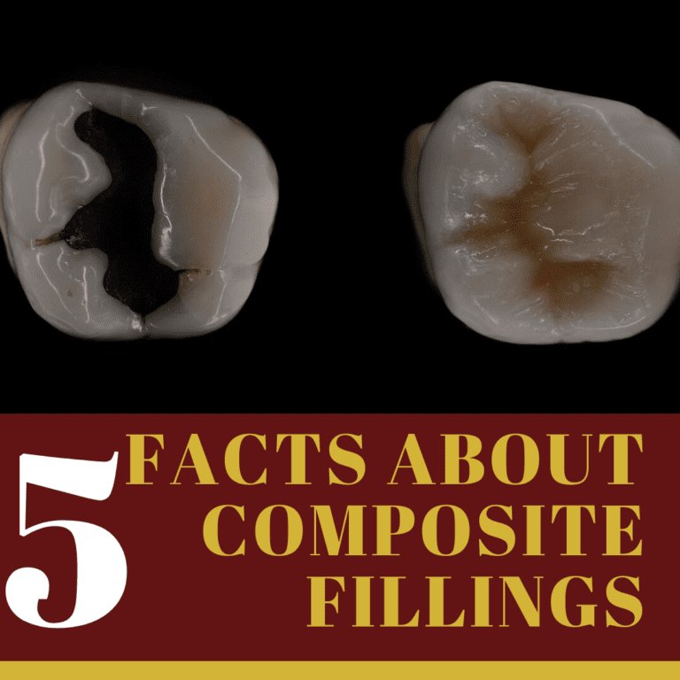 "Infographic for ""5 facts about composite fillings"""