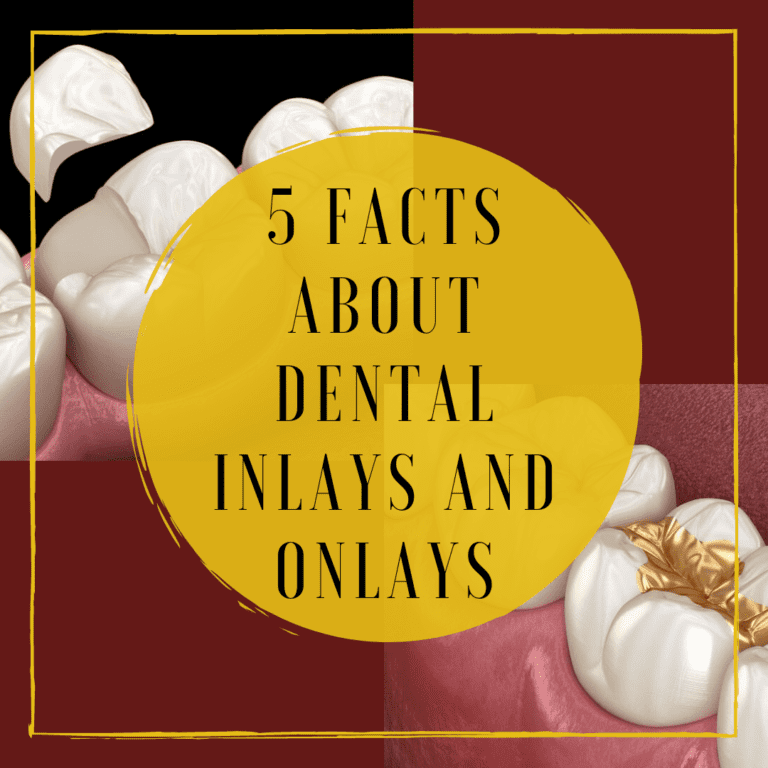 "Infograph for ""5 facts about dental inlays and onlays"""