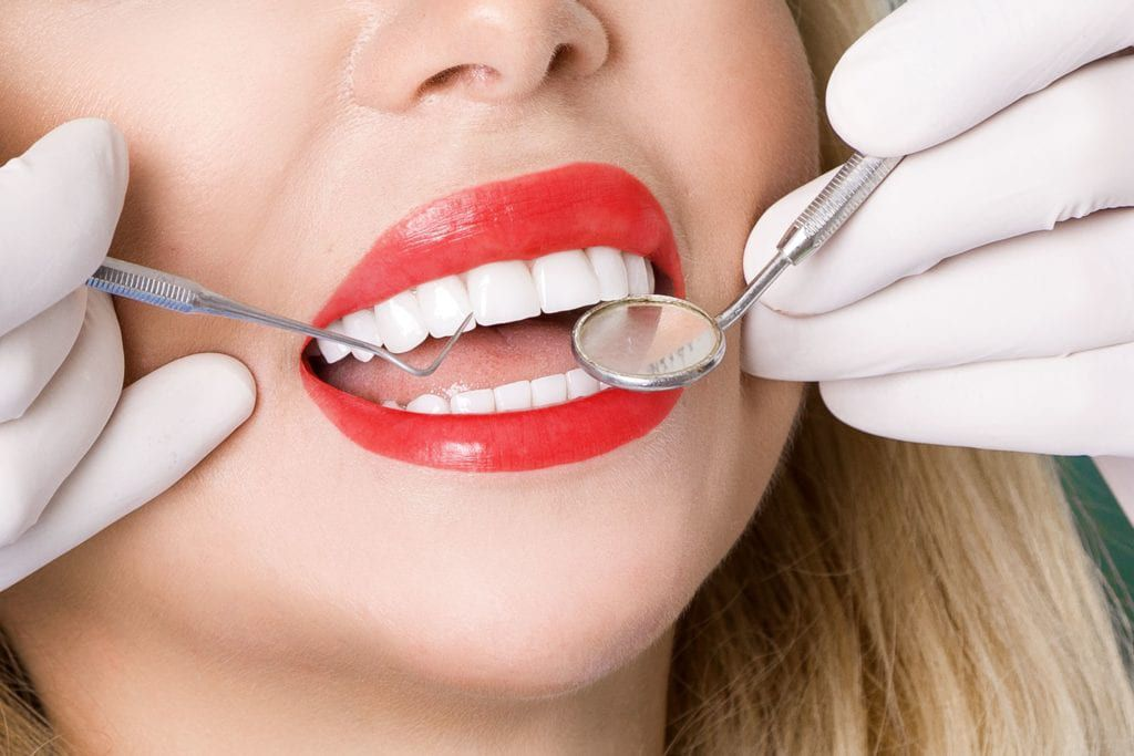 Woman being examined for veneers