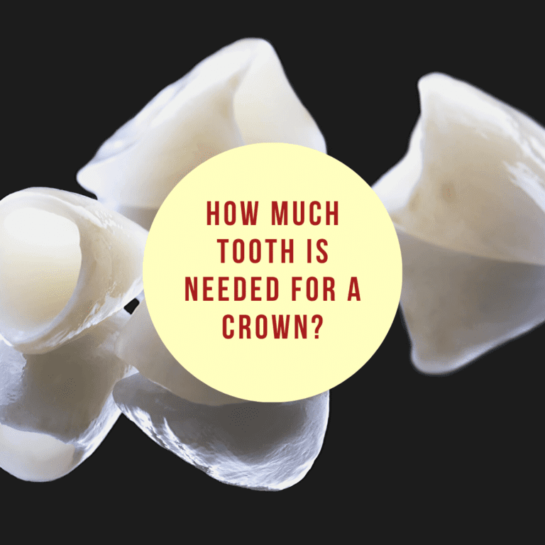 Infographic How Much Tooth is Needed for a Crown_