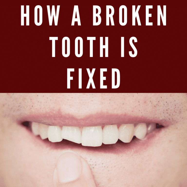 Infographic How a Broken Tooth is Fixed