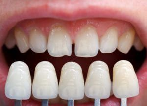 veneers being shown over natural teeth