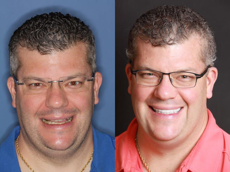 Before and After picture of TMJ Treatment