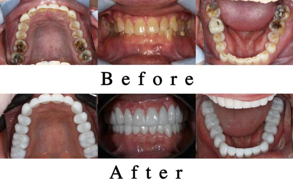 Teeth before and after TMJ Treatment