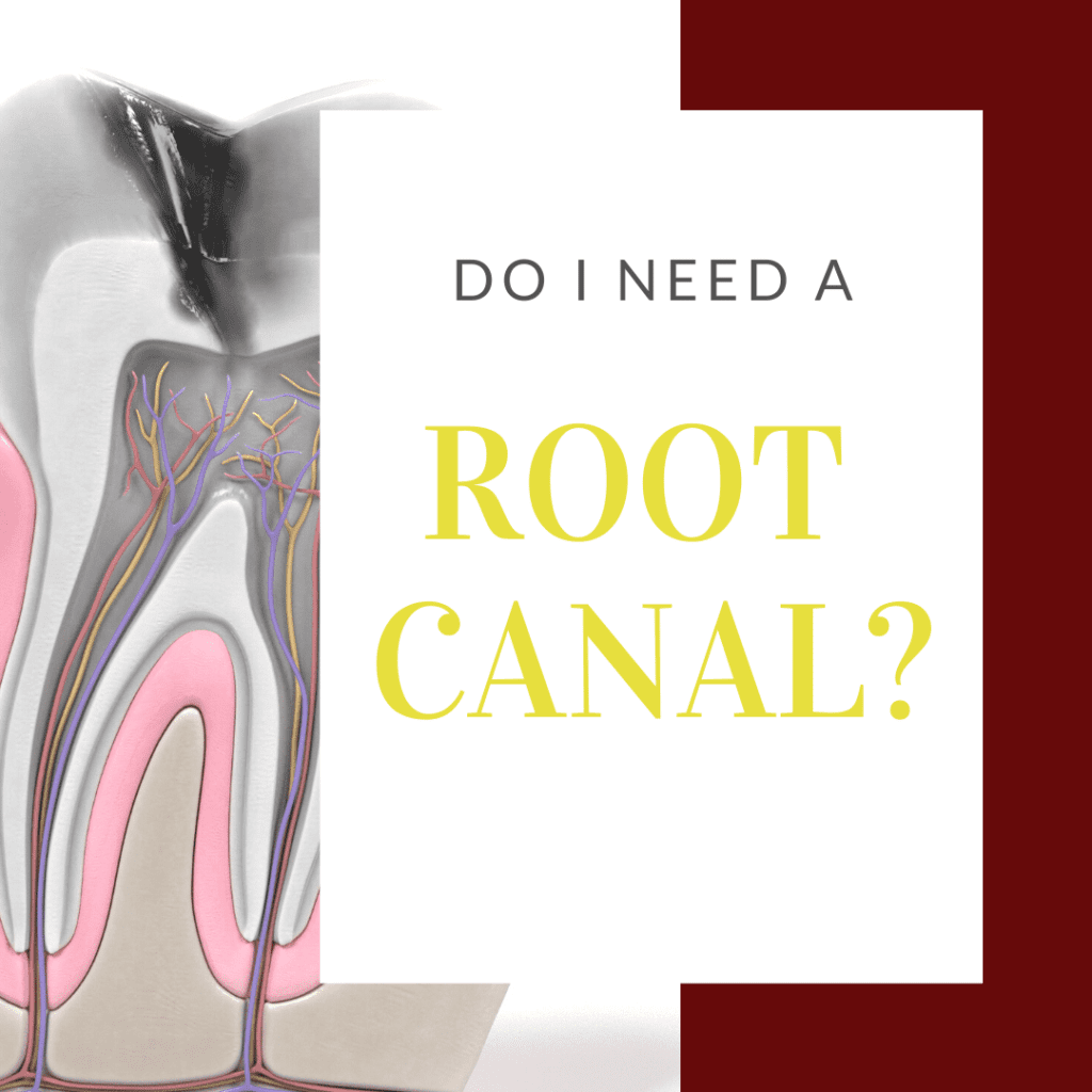 Infographic Do I Need a Root Canal