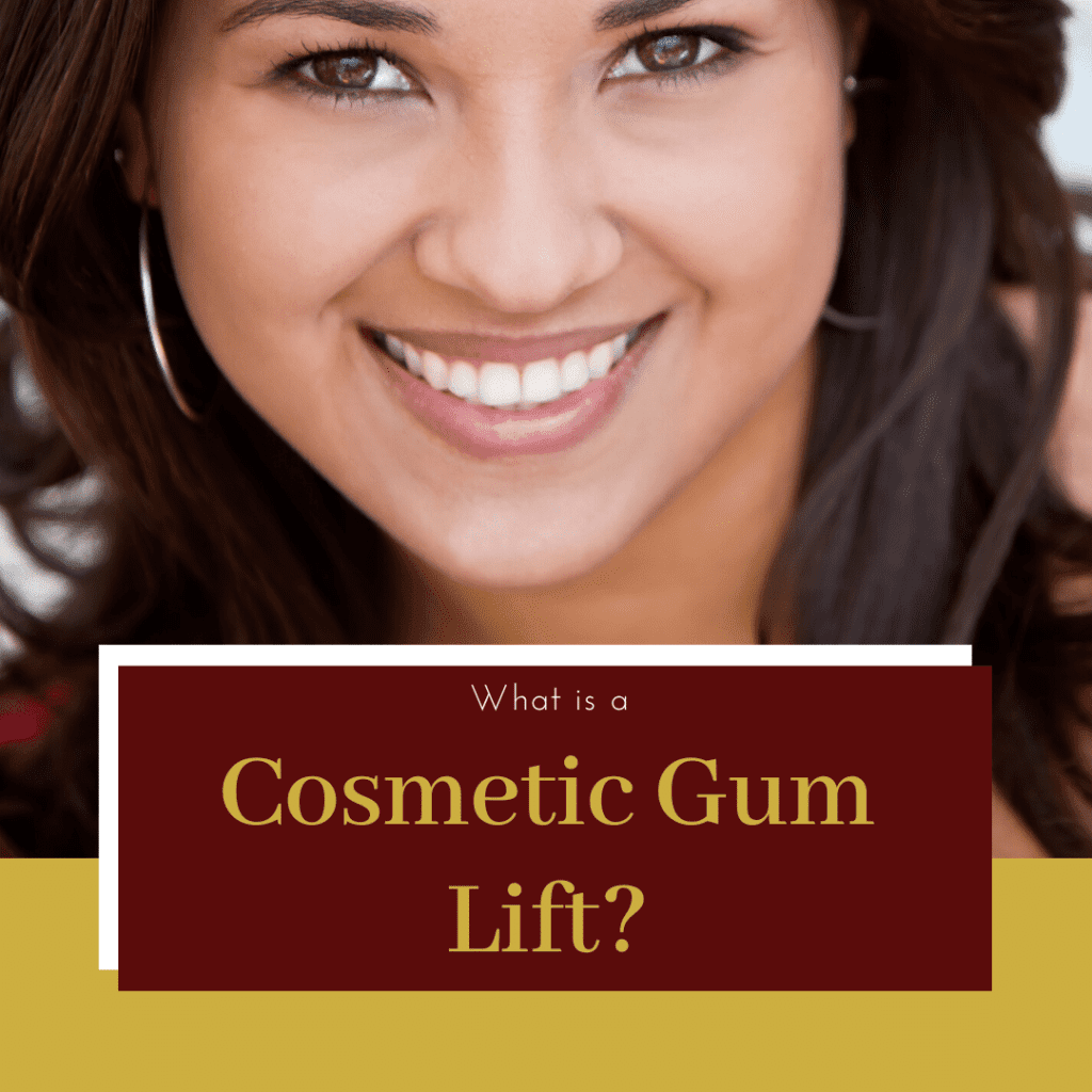 What is a Cosmetic Gum Lift?