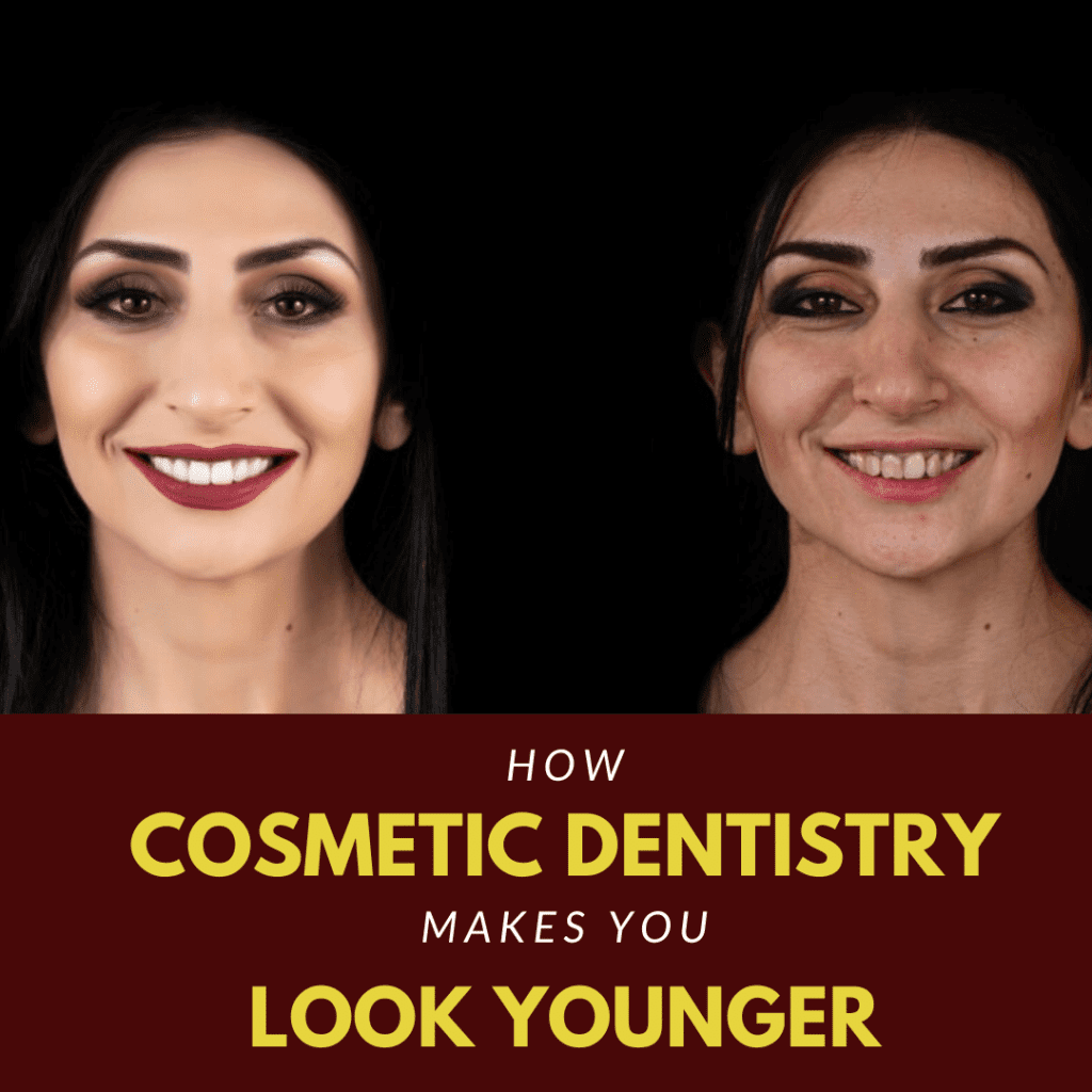 How Cosmetic Dentistry Makes You Look Younger