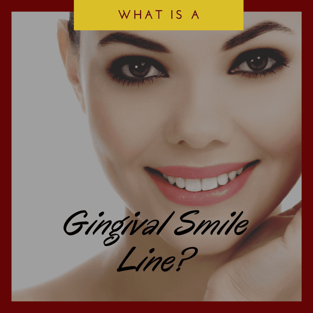 What is a Gingival Smile Line