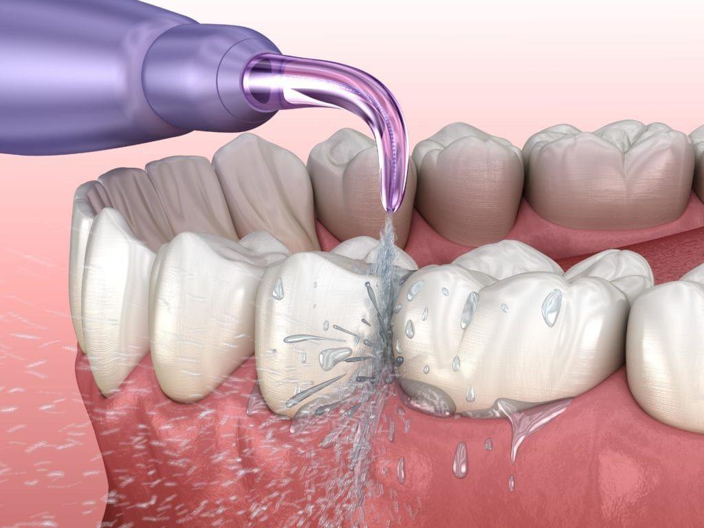 waterpik being used to water floss teeth