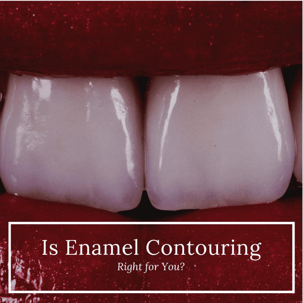 Enamel Contouring