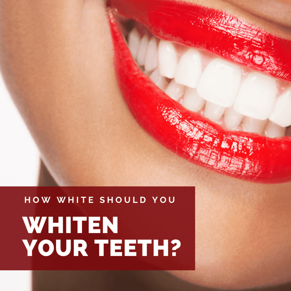 How White Should You Whiten Your Teeth_