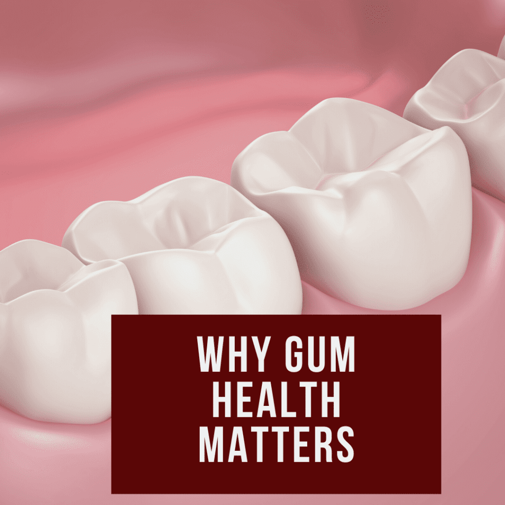 Why Gum Health Matters