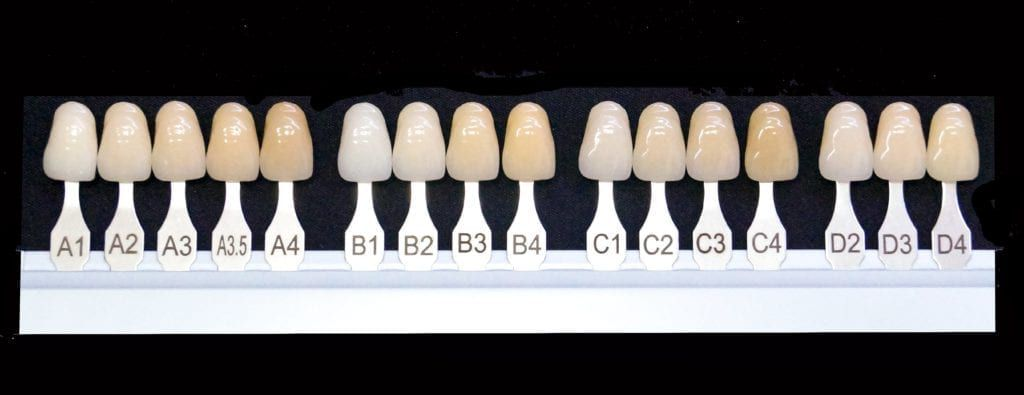 shade guide showing natural tooth color