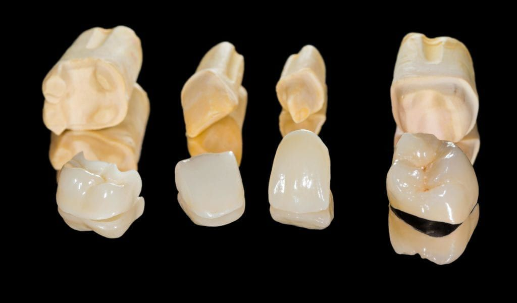 various dental restorations