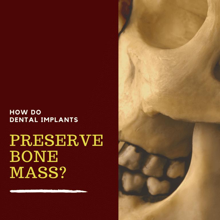 How Do Dental Implants Preserve Bone Mass