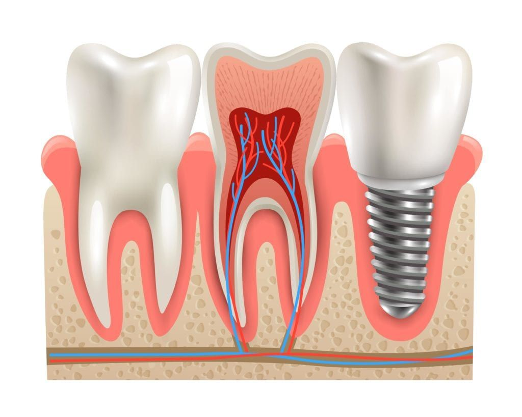 dental implant shown next to natural teeth