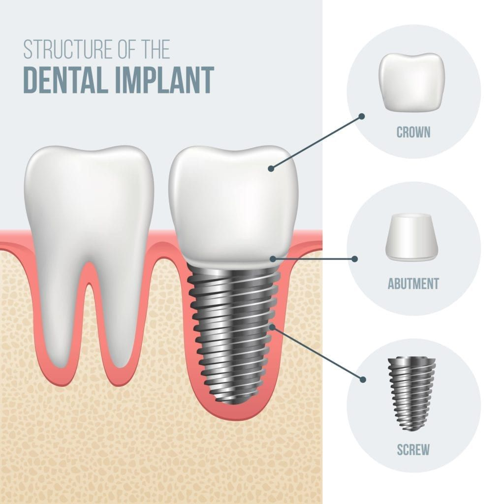 parts of dental implant