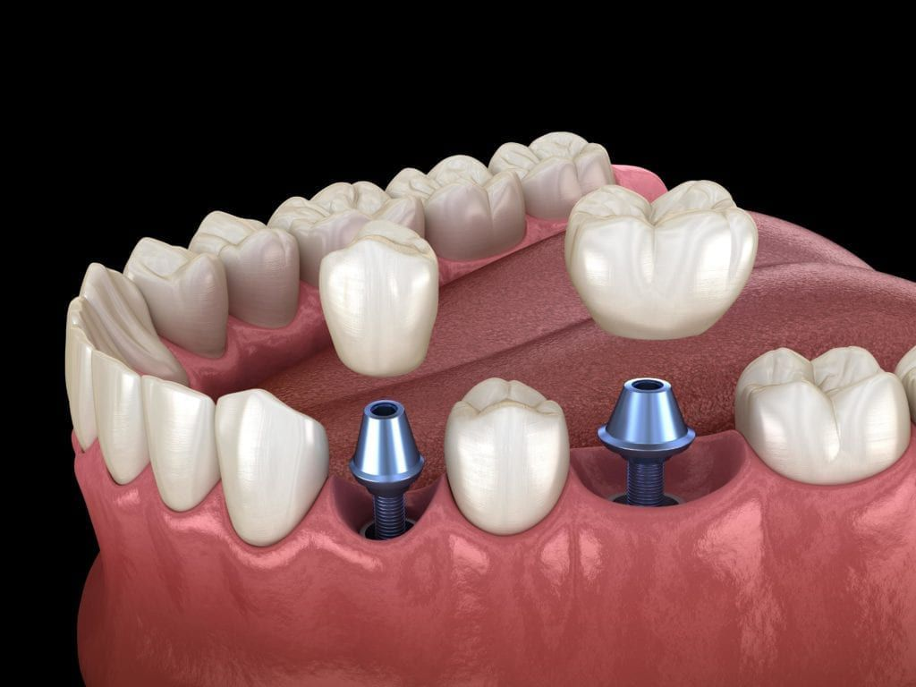 two dental implants shown in model of lower jaw