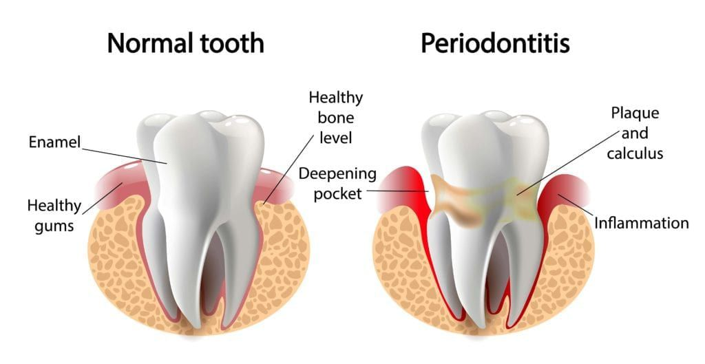 normal tooth vs. tooth surrounded by gum disease