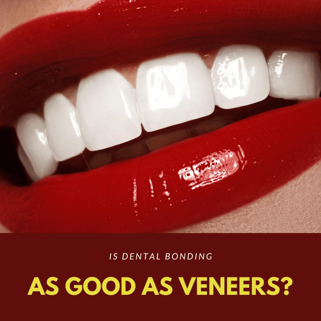 Is Dental Bonding as good as veneers