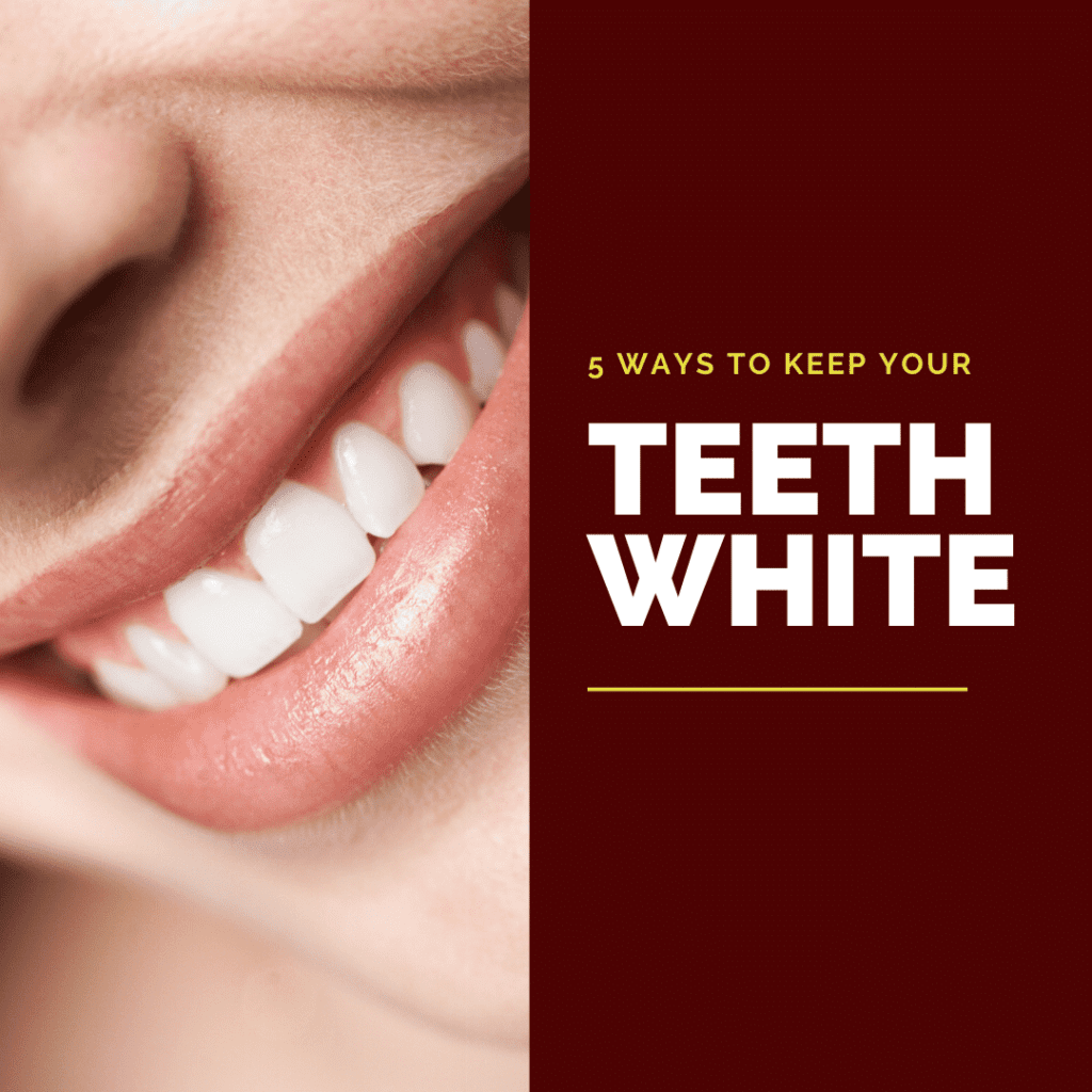 How to Keep Your Teeth White3