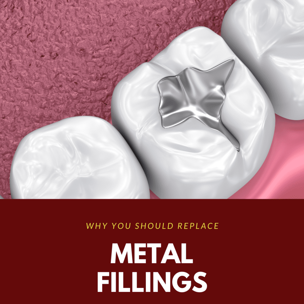 Why You Should Replace Metal Fillings2