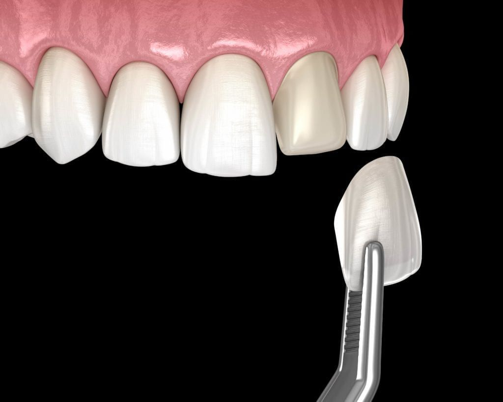 applying veneers to teeth
