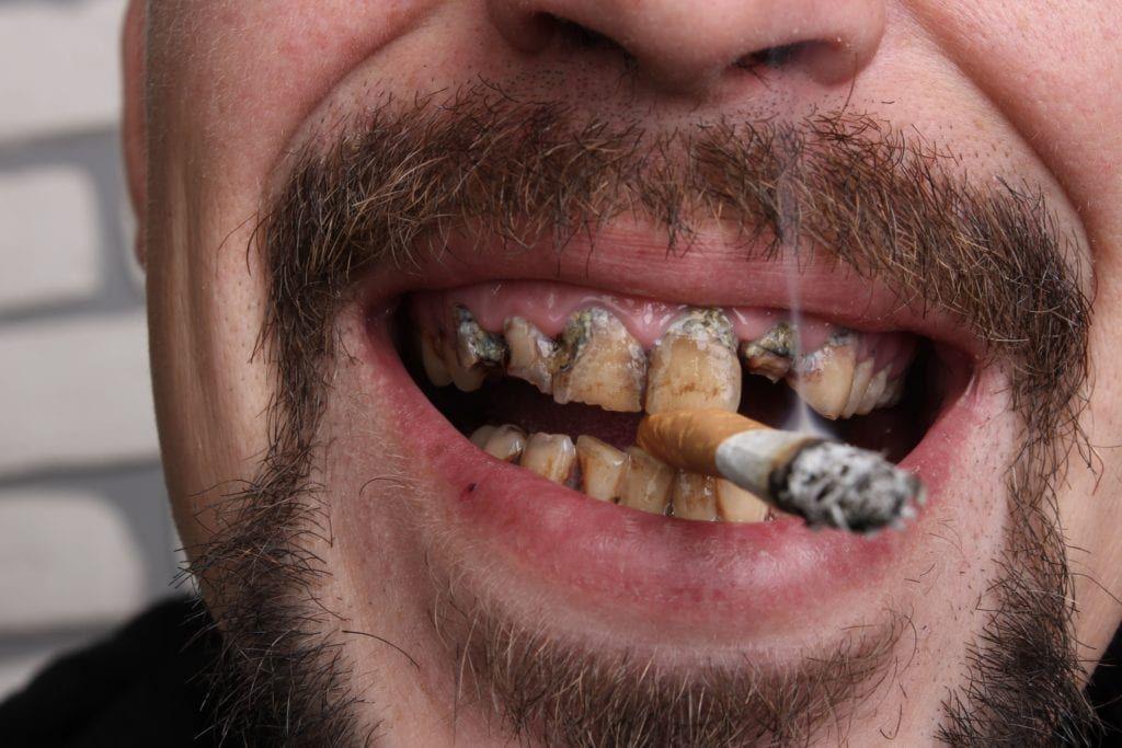 smoker with disgusting teeth