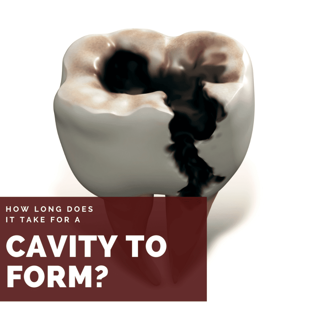 How Long Does it take for a cavity to form