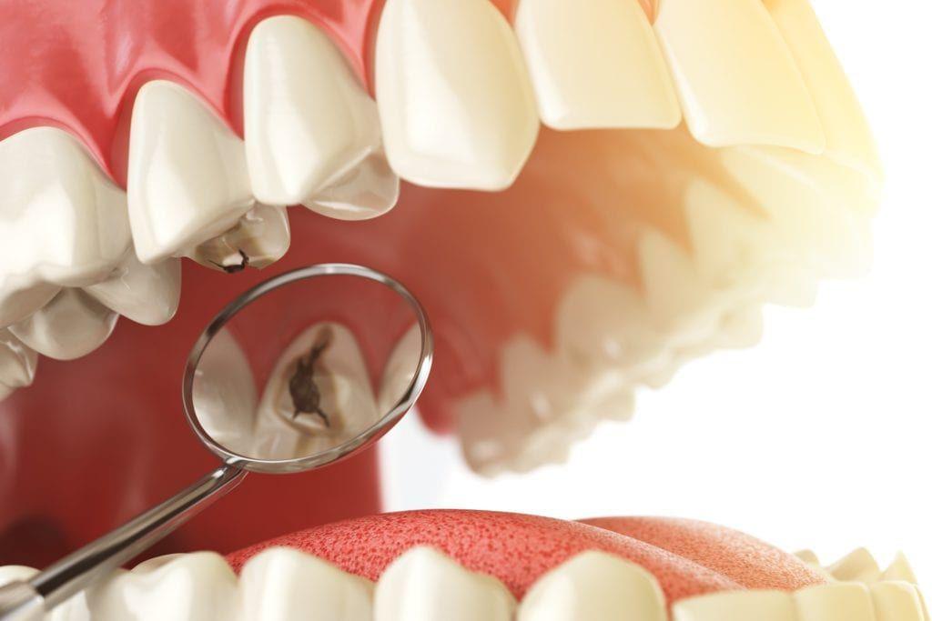 dental cavity shown in dental mirror