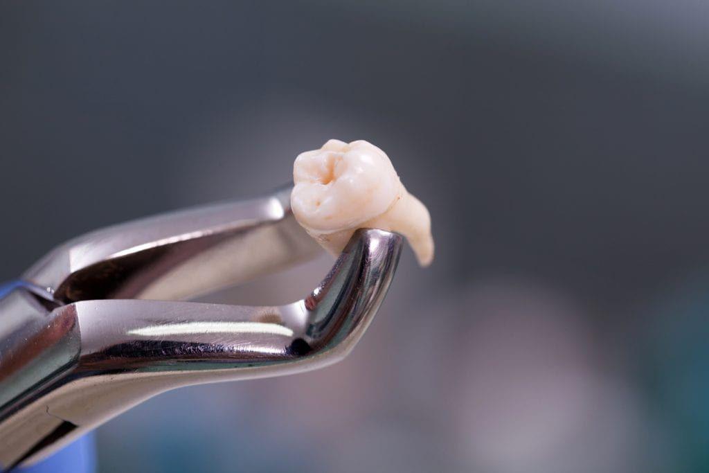 tooth being held in forceps