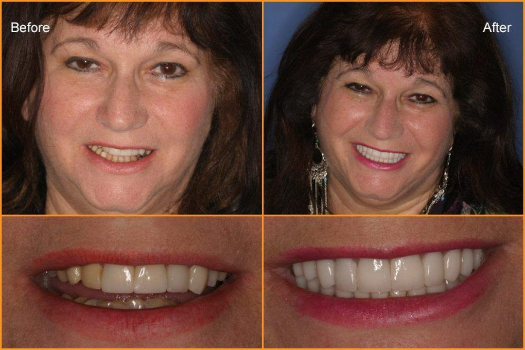 Woman's full face and close up of teeth Before and After Dental Treatment