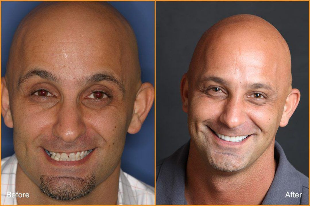 Full Face of Man Before and After Dental Treatment