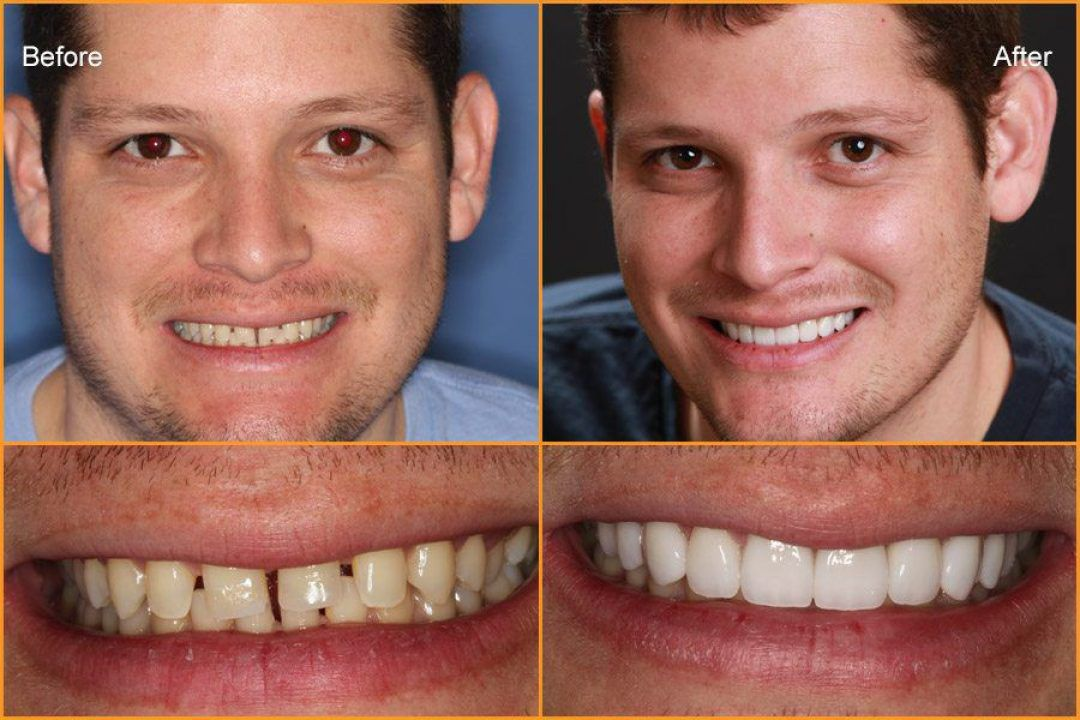 Man's full face and close up of teeth Before and After Dental Treatment